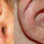 аллергический дерматит ушей