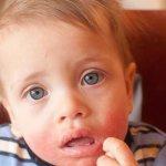 Аллергия на рожь что нельзя есть