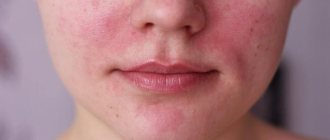 Как отличить аллергию от раздражения у ребенка