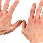 Кисти рук, пораженные дерматитом