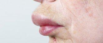 Локальный аллергический отек верхней губы является местным проявлением общей реакции