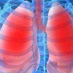 одышка бронхиальная астма