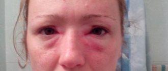 Опухание век при аллергии