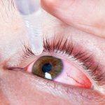 Симптоматический офтальмологический препарат для уменьшения красноты и отечности слизистой оболочки глаз.