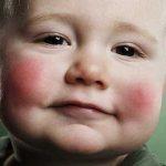 Виды аллергии у малышей до 1 года