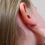 Зуд за ушами